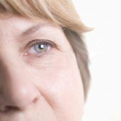Contorno de ojos para combatir arrugas
