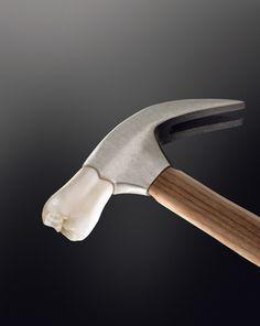 Молоток #стоматология #dentistry