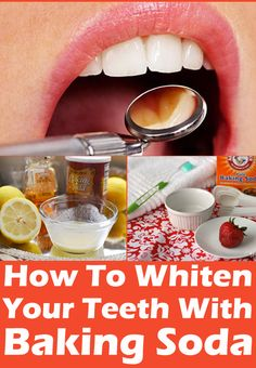 Whiten Teeth With Baking Soda At Home