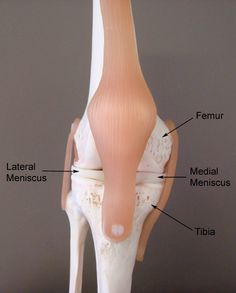 Lateral meniscus (disk between lateral condyle with lateral epicondyle) , medial meniscus (disk between medial condyle with medial epicondyle)