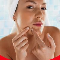 12 Effective Remedies To Remove Pimples Overnight