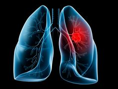Mesowatch Provides Louisiana Mine and Factory Workers Diagnosed with Mesothelioma or Lung Cancer a Call for Immediate Lawsuit Settlement…