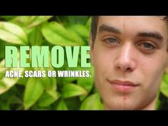 Remove Acne, Scars, or Wrinkles in Photoshop CC -  CLICK HERE for the Acne No More program #acne #acnecure #acnetips #acnecare This tutorial shows you step by step on how to Remove Acne, Wrinkles or Scars in Adobe Photoshop CC. It'd be awesome if you Rated this! Follow me on Google+: Follow on Twitter: Like Me on Facebook: Created by:... - #Acne