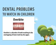 Overbite also referred as called vertical overlap is the imperfect positioning of teeth when the jaws remain closed. This teeth disorder can be easily treated in children making them free from hassles. #dental #dentalcare http://www.novadenttly.com/