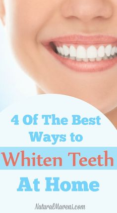 Natural teeth whitening is easy using these 4 home remedies Try them for pearly. - Natural teeth whitening is easy using these 4 home remedies Try them for pearly whites without exp - Teeth Whitening Remedies, Natural Teeth Whitening, Whitening Kit, Dental Costs, Oral Health, Health Care, Oral Hygiene, Natural Home Remedies, Easy