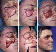 The Use of Skin Grafts with Local Flaps Skin Grafting, Medical Science, Plastic Surgery, Random Stuff, Facial, Halloween Face Makeup, Drawings, Health, Image