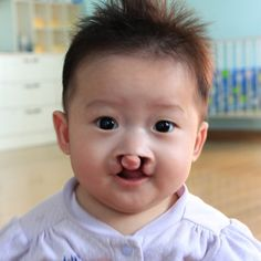July is National Cleft and Craniofacial Awareness and Prevention Month! Throughout the month, please pray for Rebecca-Isabella, a precious baby at Maria's Big House of Hope who was born with cleft lip and palate. Visit showhope.org/blog to read more about her!
