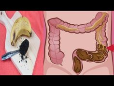 Best way to cleanse your colon at home - How to Remove 10 Pounds of Toxic Waste from Your Colon Cleaning Your Colon, Our Body, 10 Pounds, Health Remedies, Good To Know, Cleanse, Aurora Sleeping Beauty, Weight Loss, Metabolism