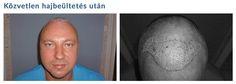 Hajbeültetési eredmények hajátültetés előtt és után készült képekkel - Hajátültetés PROFUE Clinic Hair Transplant, Trends, March, Modern, Close Up Photography, Losing Hair, Hair Transplant Cost, Hungary, Trendy Tree