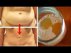 That could be the reason why you often have a bloated stomach – … - Diet and Nutrition Lose Weight In A Week, Lose Weight Naturally, Loose Weight, Weight Gain, How To Lose Weight Fast, Losing Weight, Vicks Vaporub, Cellulite, Burn Belly Fat Fast