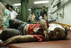 Indiscriminate bombing: A Palestinian child wounded in an Israeli strike on a UN school in...