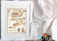 french orthodonture and medical dentistry print available at https://www.etsy.com/listing/124315102/french-orthodonture-and-medical?   ::::::::::::::::::::::::::::::::::::::::::::::::            #odditity #oddities #science #vintagemedical #scienceoddity #medical #medicaloddity #orthodonture #teeth #dentistry