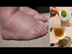 Parsley tea – the best natural remedy for swollen feet. Swollen feet and hands can be caused by several factors, including edema (fluid retention in . Foot Remedies, Health Remedies, Natural Remedies, Hair Remedies, Parsley Tea, Water Retention Remedies, Swollen Ankles, Poor Circulation, Circulation Sanguine