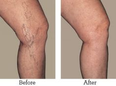 Young Living Essential Oils: How To Manage The Symptoms Of Varicose Veins Using Essential Oils