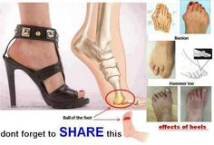 High Heels: Prolonged wearing of high heels can cause a permanent damages like bunions, hammertoes, leg tendons. This are mainly caused due to pressure on ball of the foot. The higher the heels, the greater is the pressure. This can also affect the knee and back. So on wearing high heels continuously you are increasingly damaging you feet.