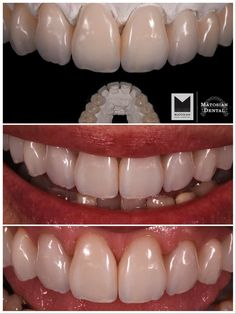Emax mono, dentistry by Matosian Dental #MatosianDental #MatosianDentalLab #MatosianLab #DentalCeramics #CosmeticDentistry #dentistry #cosmeticdentistrysandiego #newsmile #naturalsmile #smilemarkover #estheticdentistry #estheticdentistrysandiego #sandiegodentistry #brightsmile #prosthodontics #sandiegoprosthodontics #dentalVeneers #veneers #veneersSanDiego