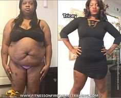 Tricey lost 82 pounds. This busy mom of 3 was diagnosed with high blood pressure and high cholesterol and didn't want to take medication. Instead, she opted to change her lifestyle and release the weight to improve her health. She found an online training program with the knowledge and accountability she was looking for.