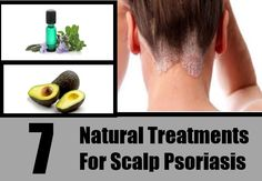 7 Natural Treatments For Scalp Psoriasis