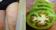 Green tomatoes are a simple folk remedy to use against varicose. Wash a few green tomatoes and chop them into pieces or circles. You should apply the chopped green tomatoes onto the knots of varicose veins, directly onto the veins and onto the venous. Varicose Vein Remedy, Varicose Veins, Natural Home Remedies, Natural Healing, Sante Plus, Green Tomatoes, Natural Treatments, Natural Medicine, Health Remedies