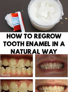 To Regrow Tooth Enamel In a Natural Way Tooth enamel is the key of having beautiful and healthy teeth. Find out how to regrow tooth enamel in a natural way at home! Teeth Health, Healthy Teeth, Dental Health, Dental Care, Oral Health, Healthy Eating, Tongue Health, Healthy Bodies, Health Diet