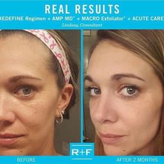 I noticed immediate changes in my skin the first time I used #REDEFINE. My lines are almost unnoticeable and my skin's appearance is bright and smooth. People even think Im still in my 20s. #RodanandFields Consultant Lindsay. Double Tap if you have been seeing similar results with your REDEFINE Regimen. Message me text me email me here at skincarerf@hotmail.com. #RealResults #rfjourney #skincare #wrinkles #lines #skin #younger #20s Visit me at http://ift.tt/1CI4213 or email me at…