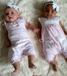 Cette mère met au monde des jumelles, mais quand elle les voit, elle est sous le choc! - 1