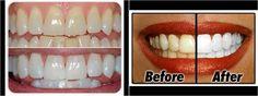 Los mejores trucos para blanquear los dientes amarillos y eliminar manchas. ¡Luce una sonrisa perfecta y descubre cómo han cambiado los famosos la suya!