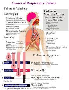 Nursing Diagnosis For Acute Respiratory Failure -- Respiratory Failure Acute Respiratory Failure, Respiratory Therapy, Respiratory System, Endocrine System, Nclex, Asthma, Nursing Information, Nursing Mnemonics, Nursing Diagnosis