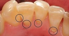 Come rimuovere il tartaro senza andare dal dentista. | Bigodino