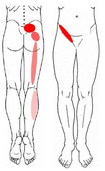 Pectineus pain is similar to the short adductors but