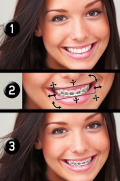 Brace Face Iphone App (.99) See what you look like with braces! See what your friends and family look like with braces!