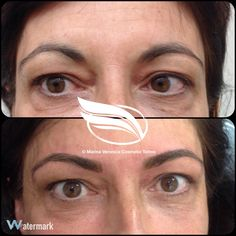 Brow reshaping using Cosmetic Tattoo in the Hairstroke technique.