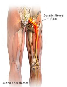 Certain stretches can help your sciatica pain that is caused by piriformis syndrome.