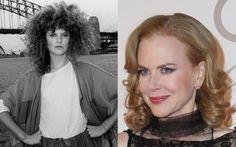 Face plastic surgery – botox and cheek injections  – Nicole Kidman