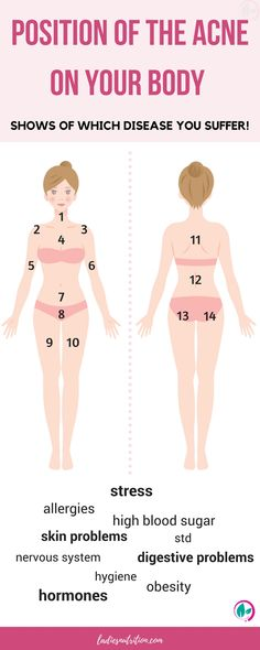 Which disease do you suffer? Find out from the position of your acne!