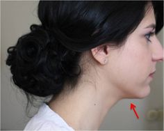 Dual Chin Elimination, Toning, Firming Treatments To Reduce Double Chin In Days No side effects.