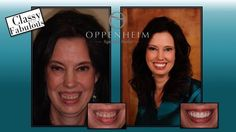 Before and After - Patient of Thomas E. Oppenheim, DMD