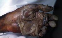 Postmortem degloving of the hand.