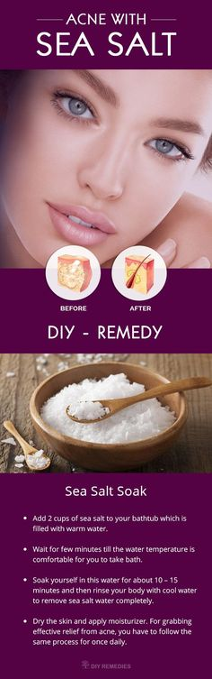 Treat Acne with Sea Salt