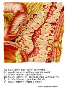 feuille de régime maladie diverticulaire