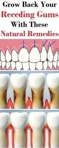 Holistic Remedies Grow back you receding gums with these natural remedies Mundpflege Alluring Become a Natural Holistic Health Practitioner Ideas Gum Health, Teeth Health, Dental Health, Oral Health, Health And Wellness, Health And Beauty, Healthy Teeth, Hair Health, Holistic Remedies