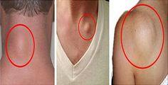 Cómo deshacerse de los grumos en la piel (lipomas) fácilmente!