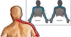 La cervicale è un dolore che colpisce il collo: ecco le cause, i sintomi e i rimedi naturali per lenire il dolore e curarla definitivamente