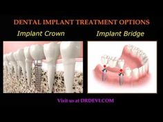 Total dental solution: The Sun City Dental Implant Clinic offers full mouth restoration in Surprise, AZ by the top Prosthodontist. Consult our dentists for the best advice!