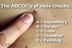 ABCDE's of mole checks Reminder to make your yearly mole check up  #RFSkintervention