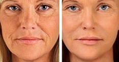 Beauty Secrets, Diy Beauty, Beauty Hacks, Fashion Beauty, Women's Fashion, Healthy Tips, Healthy Skin, Free To Use Images, Homemade Mask