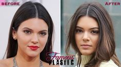 kendall jenner before and after nose job plastic  surgery ~Pinned by MizzKandie: Still a Pretty Girl~