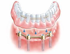 Dental Implants Cost on TeethMD.net | When You Would Need Them and How Much They Cost