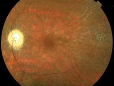 Fundus photo from patient with chronic progressive external ophthalmoplegia (CPEO) - Kearns-Sayre - Peripapillary atrophy, vascular attenuation and (temporal) salt-and-pepper pigmentary changes. A similar funduscopic picture is seen in myotonic dystrophy type 1.