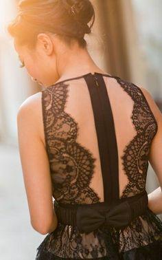 Black back lace dress